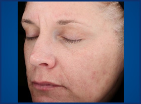 Vitalize Peel After